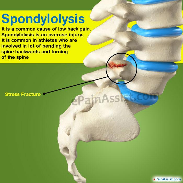 treatment for spondylothesis