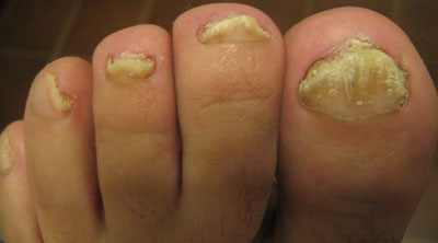 fungal-toes